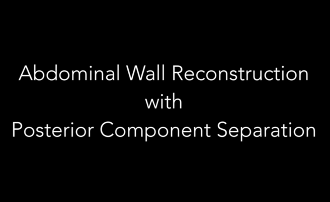Abdominal Wall Reconstruction with Posterior Component Separation technique, TAR and BioA implant