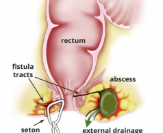 Anal fistula treatment