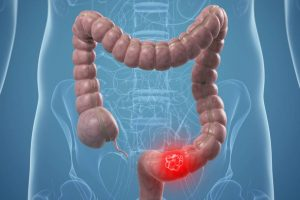 Bowel Cancer - Causes and Prevention